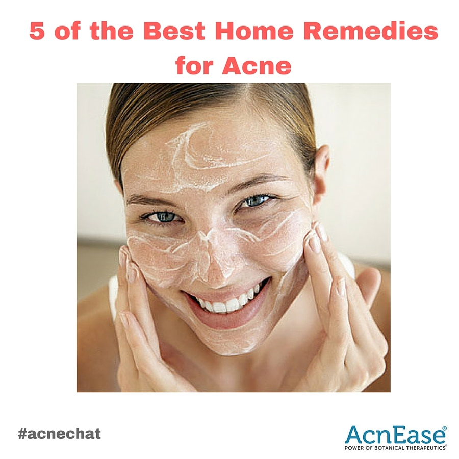 5 of the Best Herbal Home Remedies for Acne