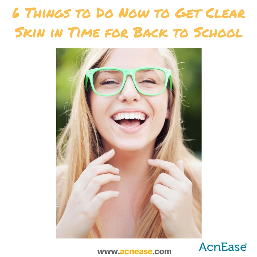 6 Things To Do Now To Get Clear Skin In Time For Back To School