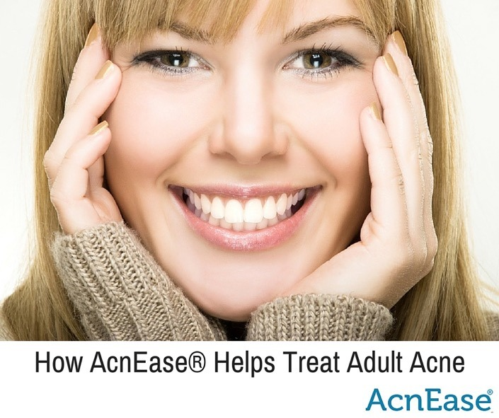How AcnEase® Helps Treat Adult Acne