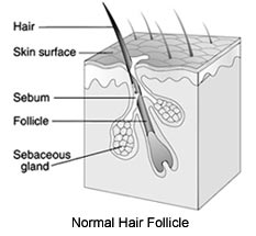 Normal Hair Follicle