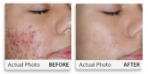Before/After Acne
