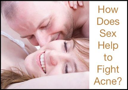 The 10 Skin Health Benefits Of Sex