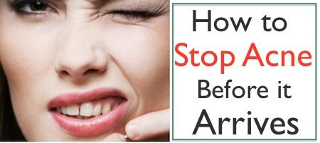How to Stop Acne Before it Arrives