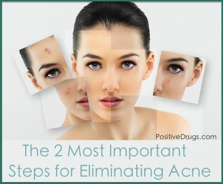The 2 Most Important Steps for Eliminating Acne Scars
