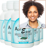 Moderate Acne Treatment
