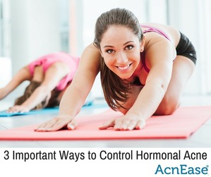 3 Important Ways to Control Hormonal Acne