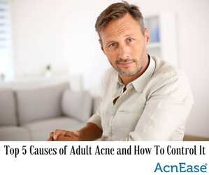 Top 5 Causes of Adult Acne and How to Control It