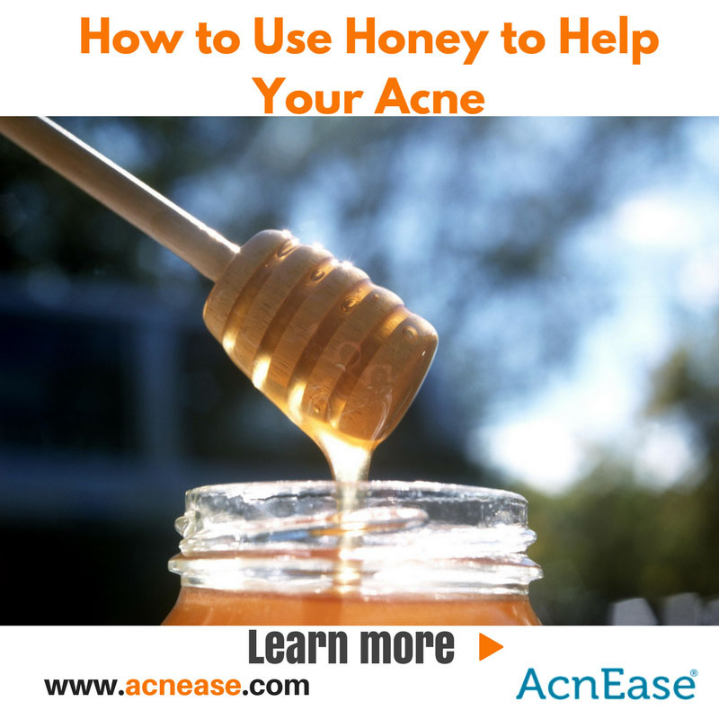 The Benefits of Using Honey to Help Your Acne, From the Inside, Out!