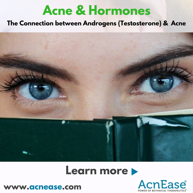 What is a Connection about Androgens (Testosterone) & Acne