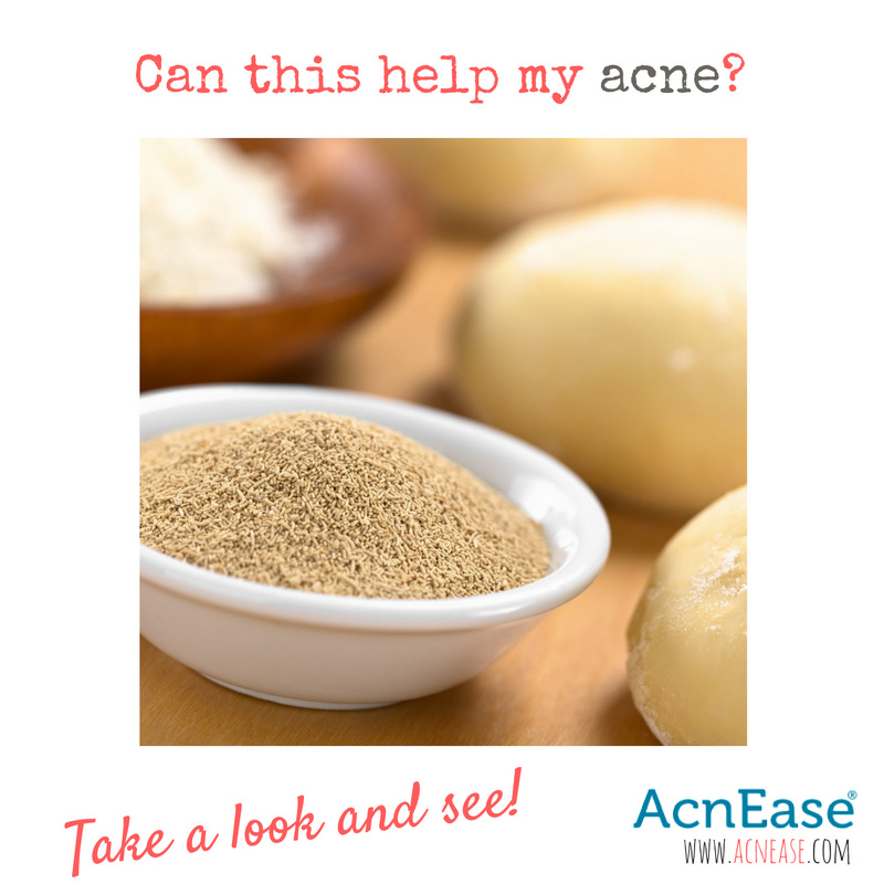 Brewers yeast acne treatment