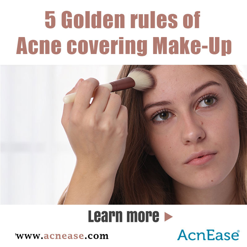 5 Golden rules of Acne covering Make-Up