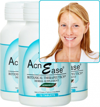 Female Hormonal Acne