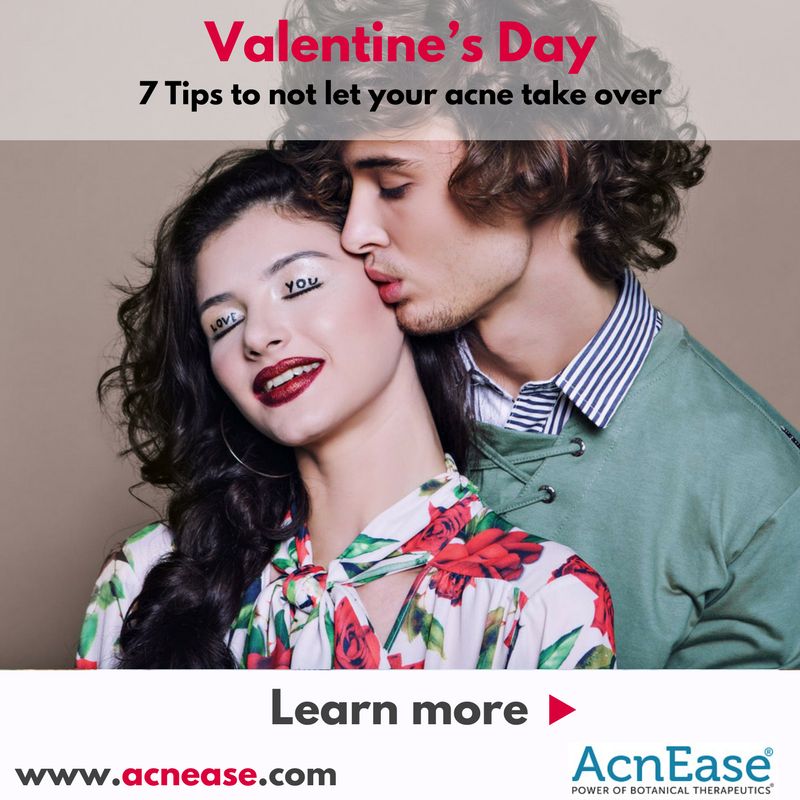 7 Tips to not let your acne take over your Valentine's Day