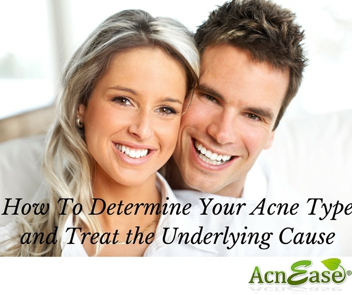 What's Your Acne Type? Learn the Different Symptoms and Take Charge of YOUR Treatment!