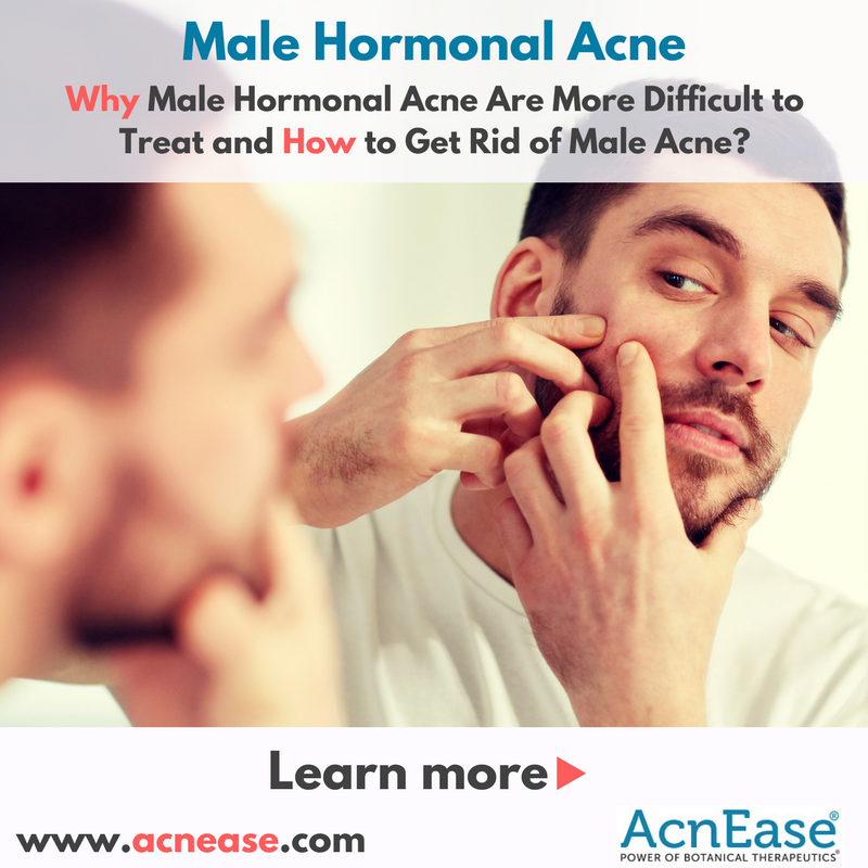 does sex help acne