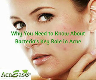 Why You Need to Know About Bacteria's Key Role in Acne