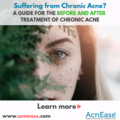 Suffering from Chronic Acne? Here's a guide for the before and after treatment of chronic acne
