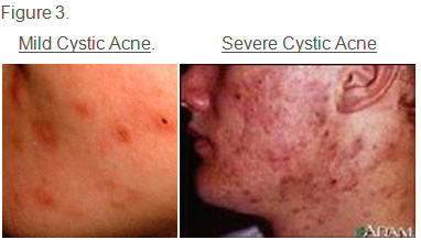 Do I Have Cystic Acne Symptoms Warnings And Treatment