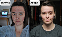 Mild Cystic acne  - before - after 4 weeks
