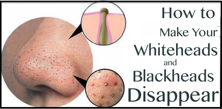 How to get rid of blackheads and whiteheads