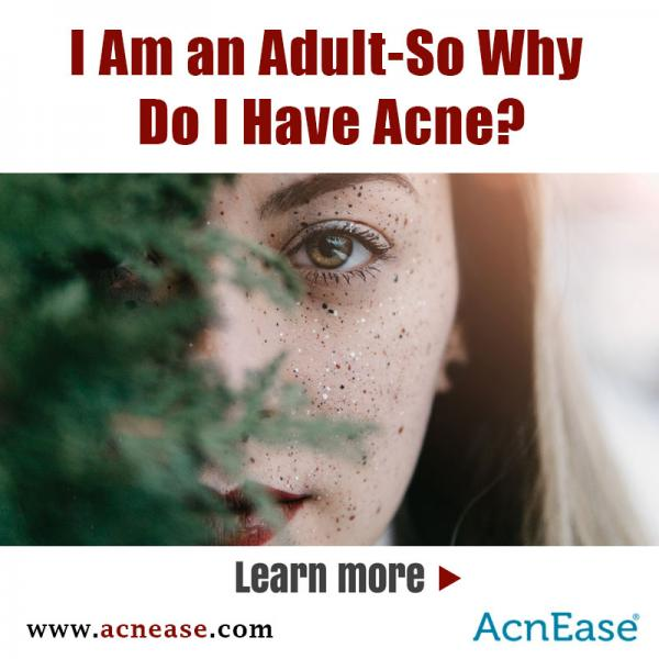 I Am an Adult-So Why Do I Have Acne?