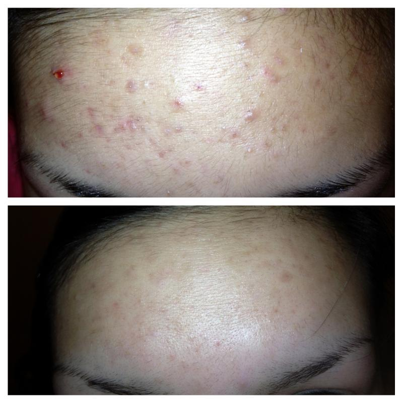 Will Teen Acne Go Away on its Own?