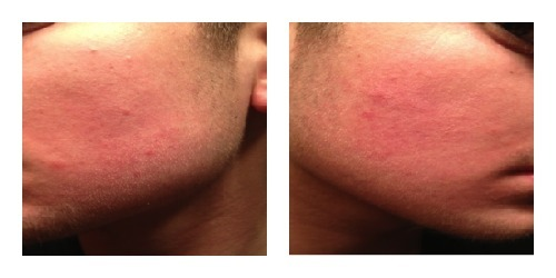 Teen Acne Treatment Safety Alerts