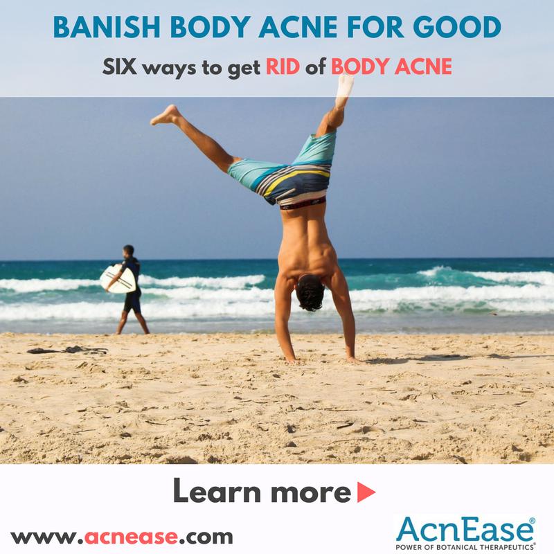Banish Body Acne for Good