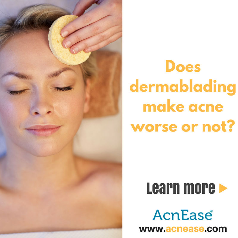 Does Dermablading help Acne-Prone Skin?