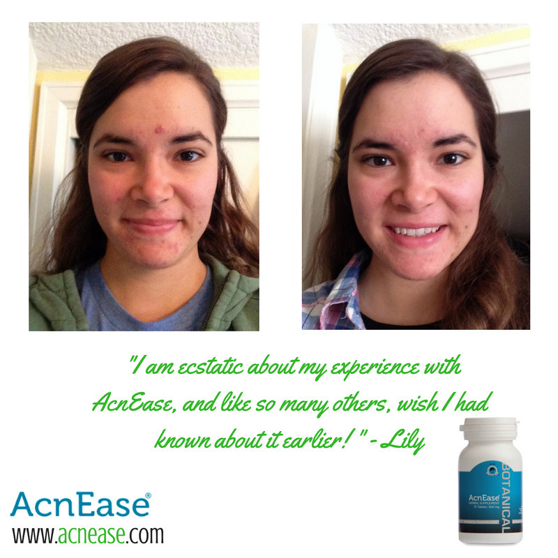 5 Ways AcnEase Works to Treat Adult and Cystic Acne Naturally