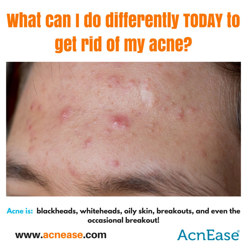 5 Ways to Make a Huge Difference in Clearing Acne TODAY!
