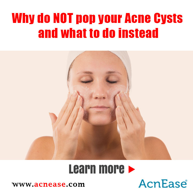 Why do NOT pop your Acne Cysts and what to do instead