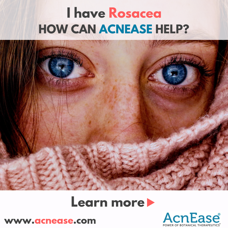 I have rosacea. How can AcnEase help?