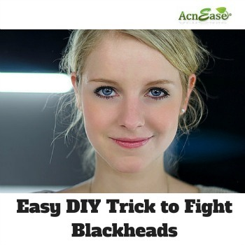 An Easy DIY Trick to Fight Blackheads