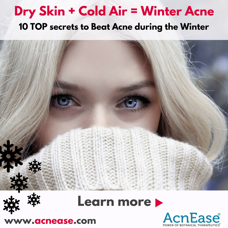 Dry Skin + Cold Air = Winter Acne