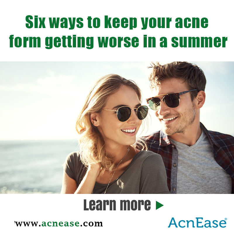 Six ways to keep your acne form getting worse in a summer