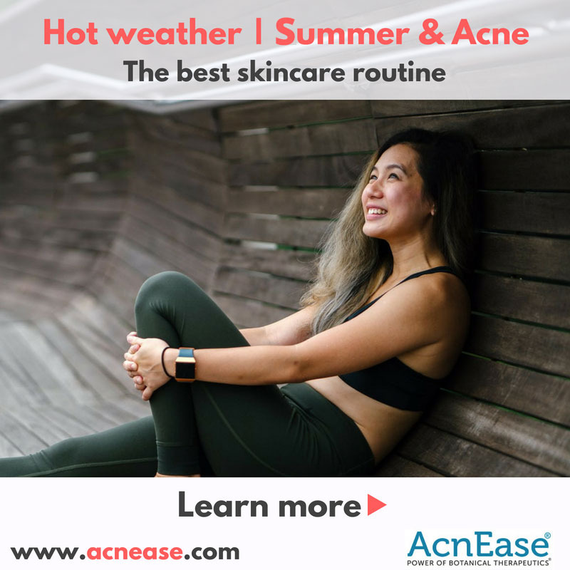 The best skincare routine in hot weather | summer for acne-prone skin