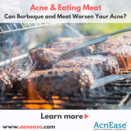 Can Barbeque and Meat Worsen Your Acne?