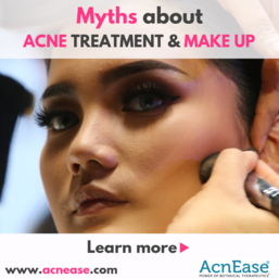 Myths about acne treatment and make up