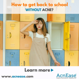 How to get back to school WITHOUT acne!
