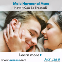 Male Hormonal Acne and How it Can Be Treated