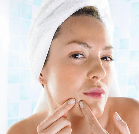 7 Easy Tips for Decreasing Acne Breakouts | Blog