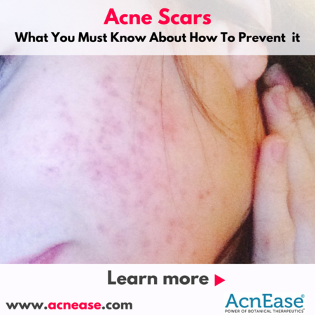 What You Must Know About How To Prevent Acne Scars | Blog