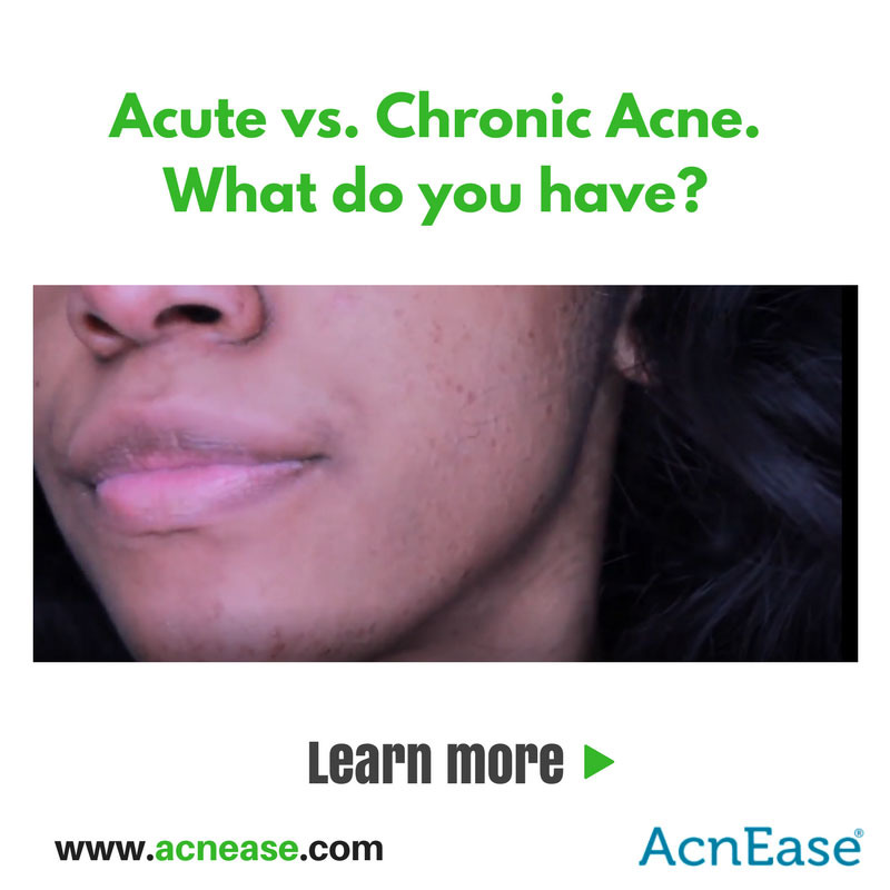 Acute vs Chronic Acne: How to Identify in Order to Treat