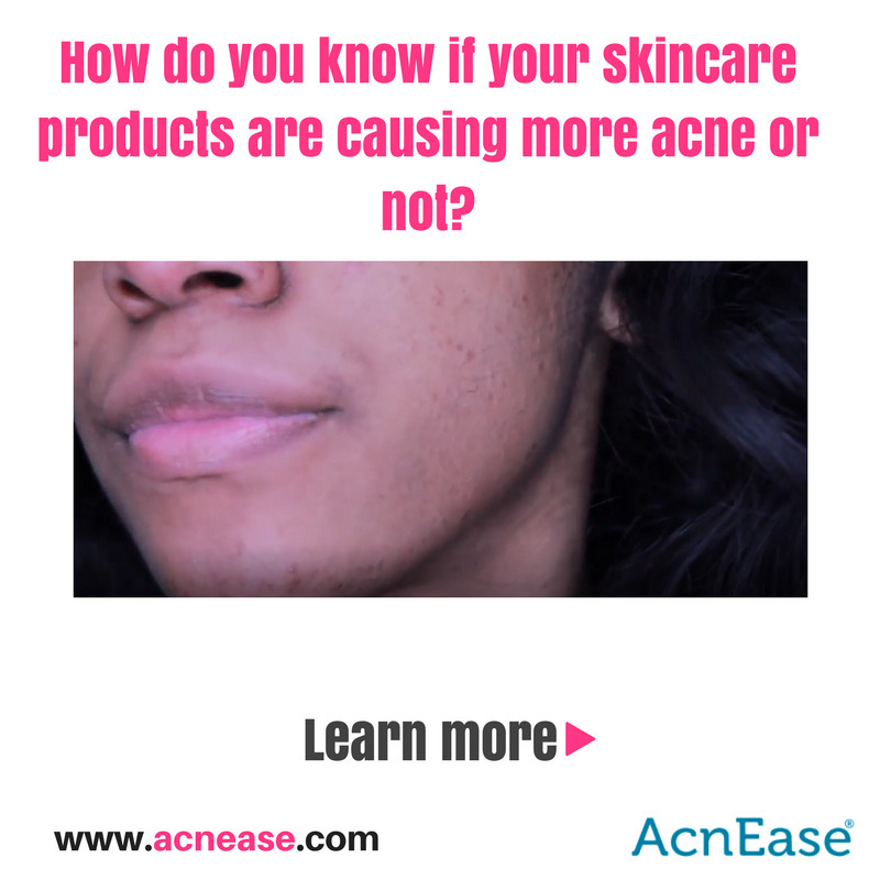 Are Your Skincare Products Causing More Acne?