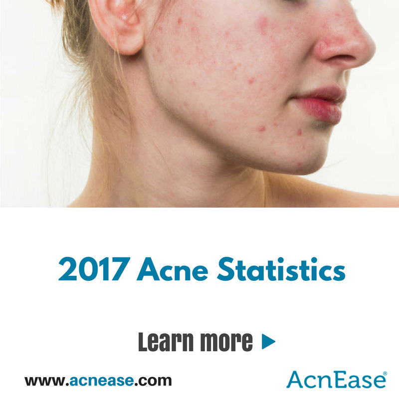 The Facts Behind The Acne Statistics 2017