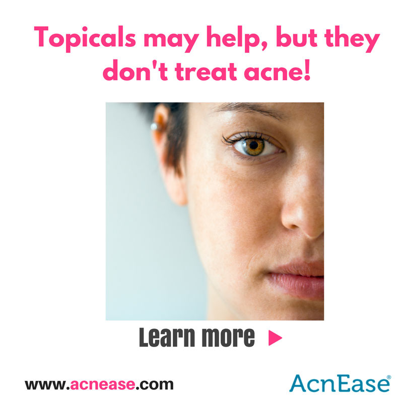 Why Topicals Alone Will Never Get Rid of Your Acne