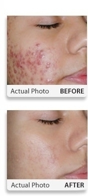 Selecting the Right Acne Treatment for Your Skin