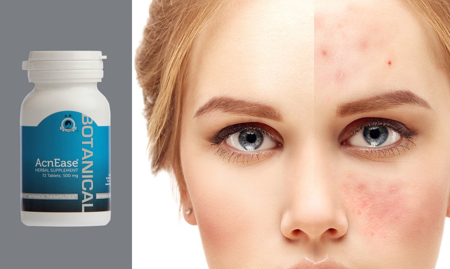 Have Chroic Acne?  Two ingredients you  do NOT want to useand ONE you DO!