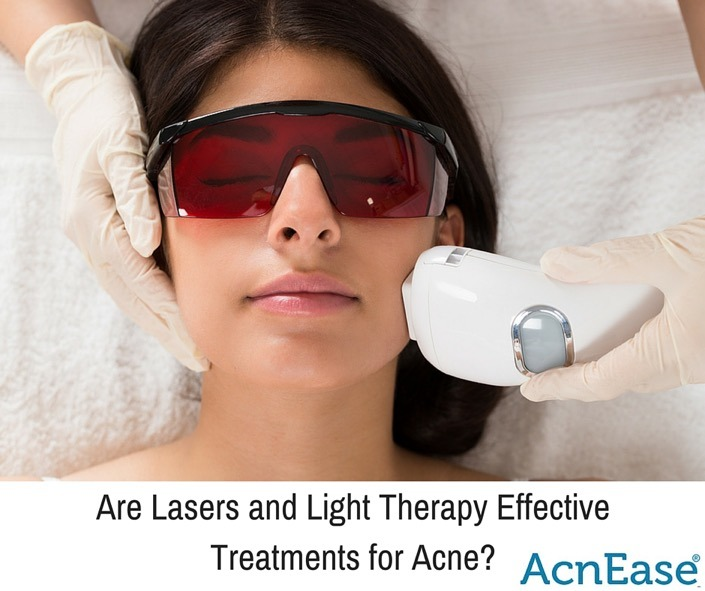 Are Lasers and Light Therapy Effective Treatments for Acne?